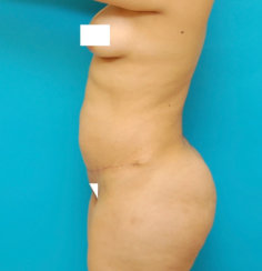 Body Transformation: Modern Abdominoplasty & Brazilian Butt Lift, Correction of Buttock Dimples