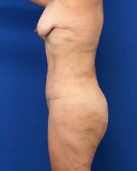 Modern Abdominoplasty & Body Contouring
