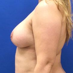 Breast Lift & Breast Augmentation