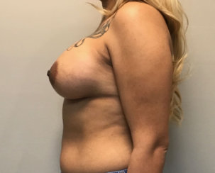Did She Get a Breast Lift? Where Are Her Scars?