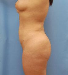 Brazilian Butt Lift and Body Contouring