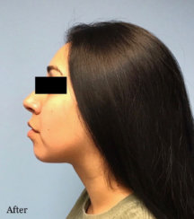 Double Chin Correction Treatment that Takes 30 Minutes or Less!