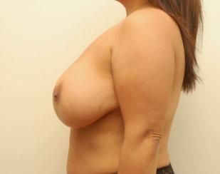 Major Breast Revision & Nipple Areolar Reconstruction