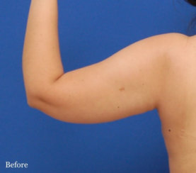 Liposuction of the Arms