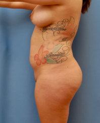 Brazilian Butt Lift & Body Contouring