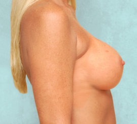 Breast Augmentation & Correction of Breast Asymmetry