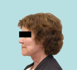 Facelift, Neck Lift, Eyelid Suregry & Brow Lift