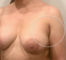Getting Rid of Armpit Fat!!!