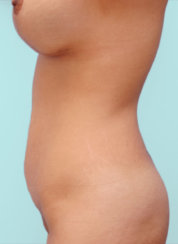 Abdominoplasty, Breast Lift and Breast Augmentation