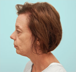 Facelift, Neck Lift & Upper and Lower Blepharoplasties