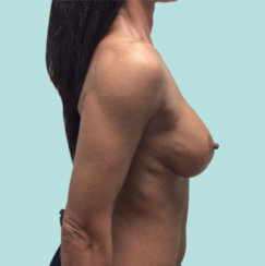Breast Implant Revision: Correction Of Breast Implant Rippling & Cleavage Creation