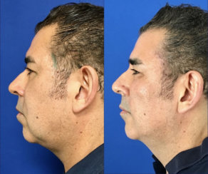 Minimally Invasive Facelift Elevation