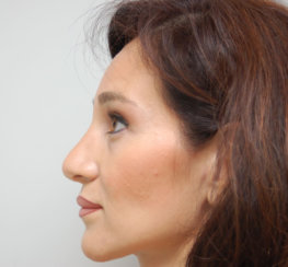 Rhinoplasty & Septoplasty