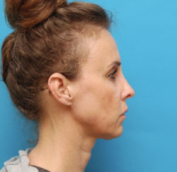 Closed Rhinoplasty, Correction of Laugh Lines & Lip Augmentation