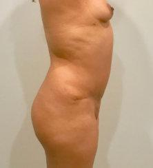 Abdominoplasty & Body Contouring