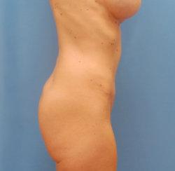 Tummy Tuck, Umbilical & Ventral Hernias Repair, Liposuction