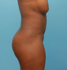 Standard Abdominoplasty & Liposuction