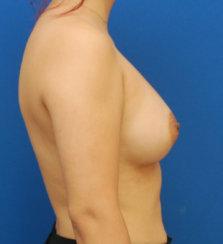 Breast Augmentation: Breast Asymmetry Correction