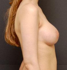 Breast Augmentation & Breast Asymmetry Correciton