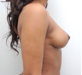 Breast Lift, Breast Reduction