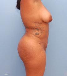 Brazilian Butt Lift, Hips Sculpture, Correction of Buttock Dimples & Cellulite