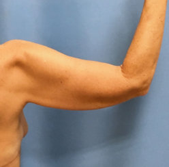 Arm Lift (Correction of Sagging Arm Skin)