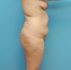 Liposuction of Abdomen, Flanks, Back and Fat Transfer to Hips