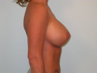 Breast Implants Revision