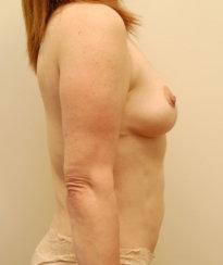 Mommy Makeover: Modern Abdominoplasty, Liposuction & Breast Lift