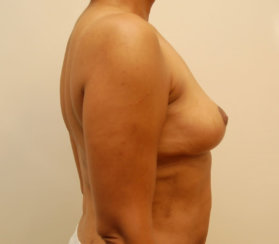 Mommy Makeover: Breast Lift