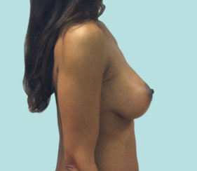 Breast Implant Removal & Replacement, 450cc to 700cc