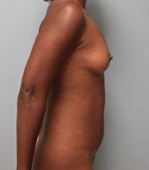Breast Augmentation & Abdominal Liposuction