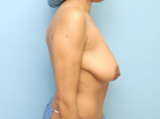 Full Mastopexy Breast Lift with Breast Augmentation