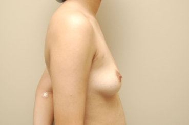 Breast Augmentation with Silicone Cohesive Gel Implants