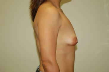 Tubular Breast Deformity or Tuberous Breast Deformity, Uneven Breasts