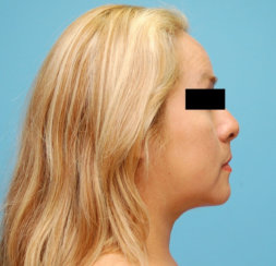 Double Chin Correction - Liposuction of the Neck