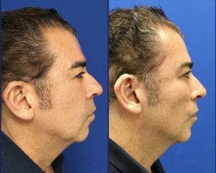 Minimally Invasive Facelift Elevation