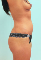 Modern Abdominoplasty