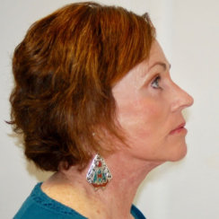Facelift, Neck Lift, Brow Lift & Upper and Lower Eyelids Surgery