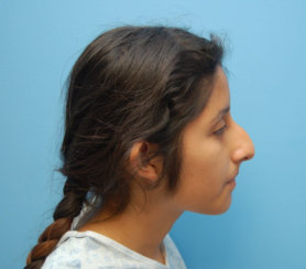 Rhinoplasty and Septoplasty Done Together