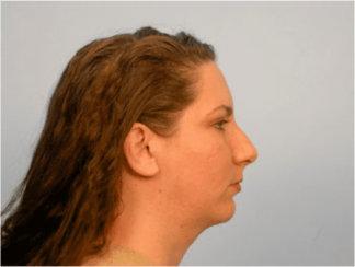 Neck Lift & Chin Implant