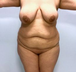 Lipo 360: Results Achieved with Liposuction Only & Under 2 Hours