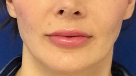 Lip Augmentation with Fat Transfer