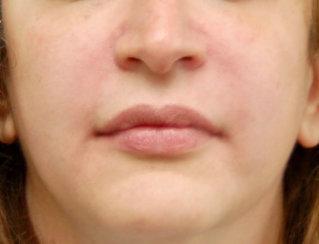 Nasolabial Folds Correction