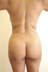 Liposuction of the Back