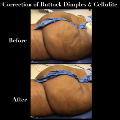 Correction of Buttock Dimples