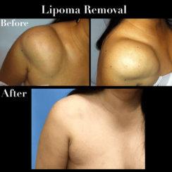 Shoulder Lipoma Removal