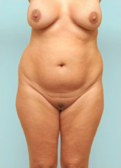 Liposuction of Abdomen and Back