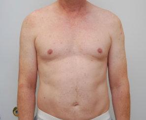 Pectoral Implants