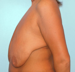 Breast Lift & Reduction Following Massive Weight Loss